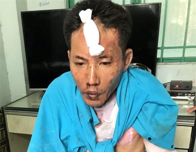 2 cháu bé bị cha dượng dùng xăng đốt đã tử vong