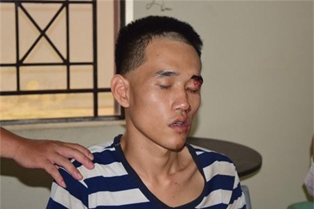 NHỮNG VỤ ÁN RÚNG ĐỘNG DƯ LUẬN TUẦN QUA: Nam thanh niên giết người trong đám tang cha ruột