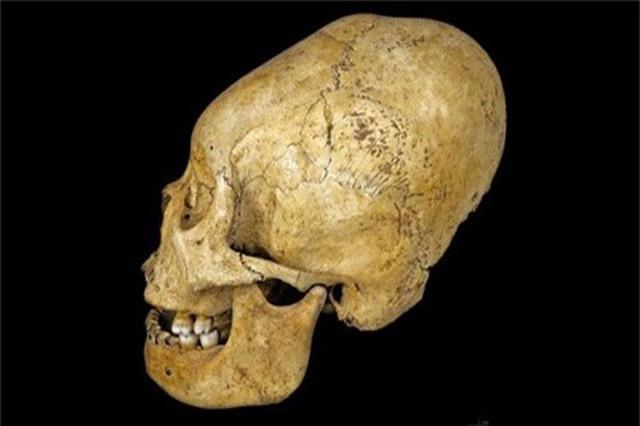 Khám phá nguyên nhân khiến các bộ tộc xưa có tập tục làm biến dạng hộp sọ?