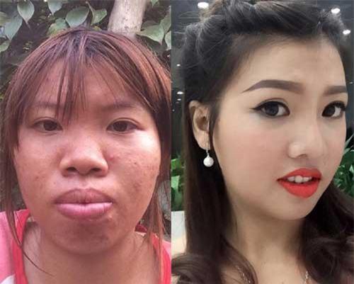 """8 ca thẩm mỹ của chị em Việt gây bão dư luận vì """"Vịt hóa Thiên Nga"""""""
