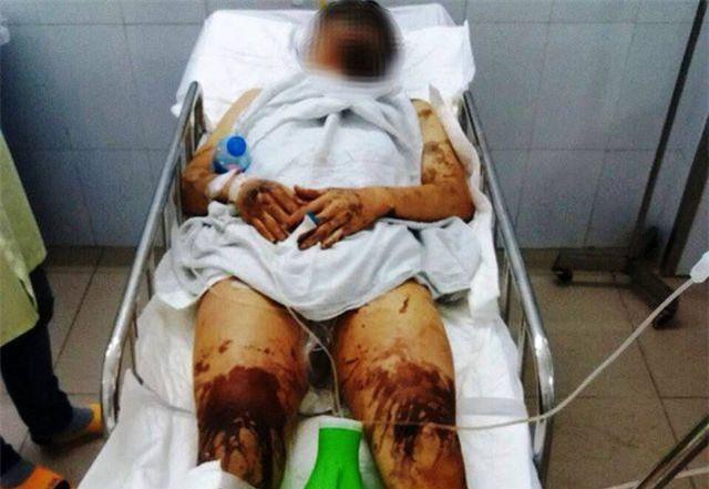 Quảng Ngãi: Truy lùng hung thủ cắt gân chân, tạt axit đôi nam nữ giữa Tết