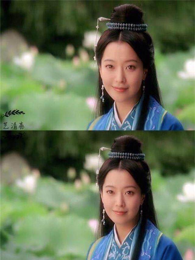Gương mặt sưng phù của biểu tượng nhan sắc xứ Hàn Kim Hee Sun khiến fan hoang mang - 4