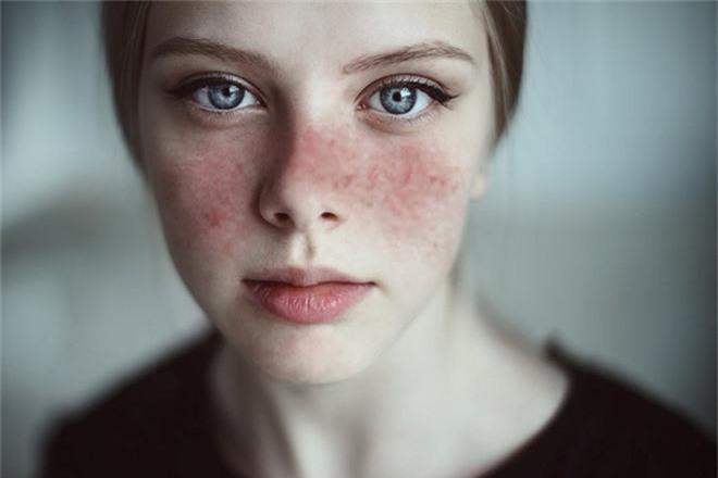 Bị ngứa rát ở viền môi: tưởng bình thường nhưng hóa ra lại cảnh báo nhiều chứng bệnh - Ảnh 4.