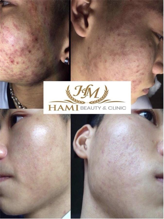 Hình ảnh trước và sau điều trị 1 tháng với Hami Spa