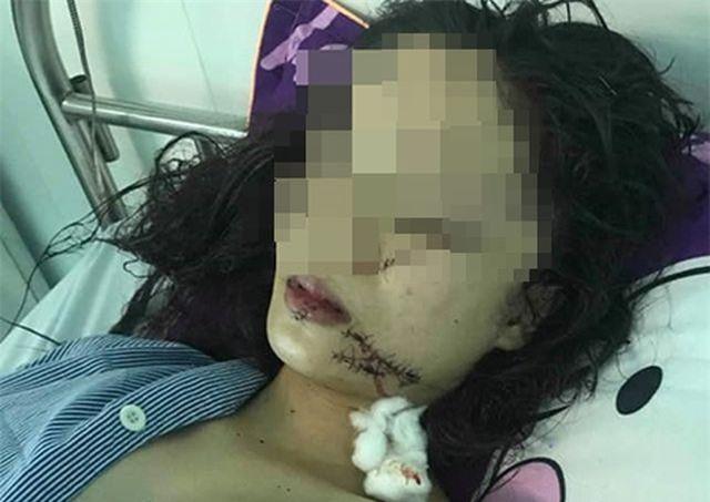 Vụ thiếu nữ 18 tuổi bị rạch nát mặt: Chỉ vì mâu thuẫn nhỏ