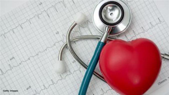 Bệnh lý tim mạch là nguyên nhân gây tử vong số 1 ở Mỹ.
