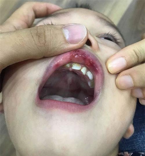 """Hà Nội: Cô giáo """"vuốt má"""" bé 3 tuổi hằn cả bàn tay và tụ máu môi"""