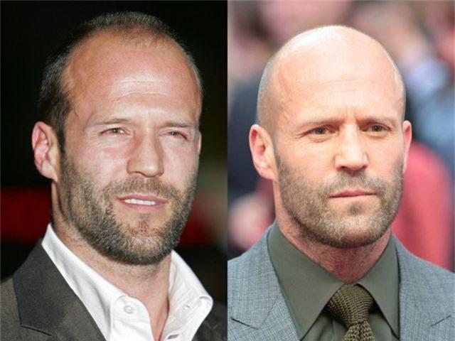 """Những nam diễn viên đẹp trai hơn với kiểu """"đầu trọc"""" - 7"""