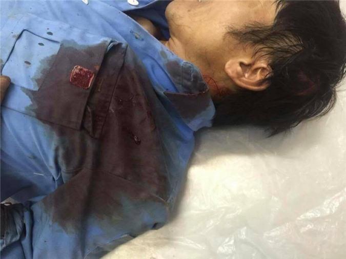 Hà Nội: Truy sát kinh hoàng, 11 người bị chém trong đêm