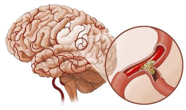 Nguyên nhân gây ra căn bệnh tai biến mạch máu não ở phụ nữ trung niên