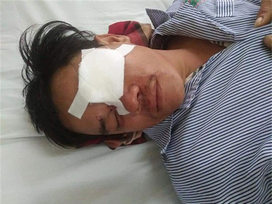 Khởi tố người phụ nữ đâm mù mắt con nợ. Công an huyện Tuy Phong, tỉnh Bình Thuận đã ra quyết định khởi tố bị can đối với bà Phạm Thị Ngọc Tuyết về hành vi dùng vỏ chai bia đập bể, đâm mù mắt con nợ. (CHI TIẾT)