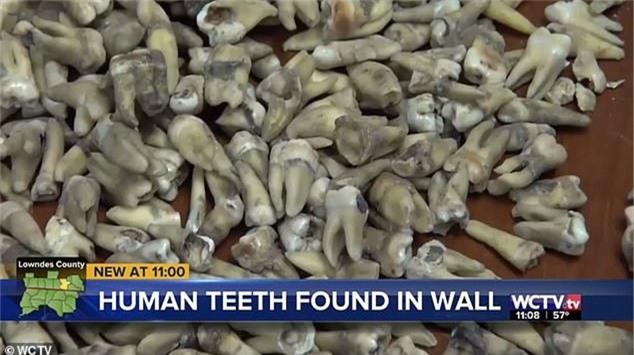Công nhân phát hoảng khi phát hiện 1.000 chiếc răng người được chôn trong tường 1