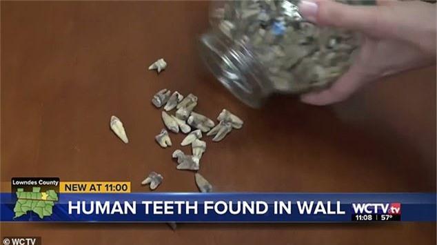 Công nhân phát hoảng khi phát hiện 1.000 chiếc răng người được chôn trong tường 2