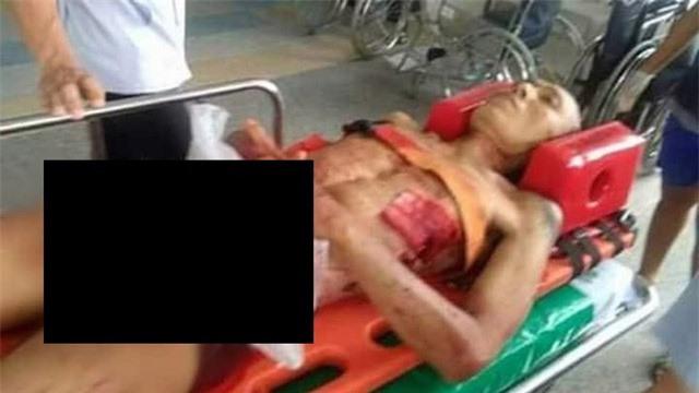 Reawat Petnui, 41 tuổi, được đưa vào bệnh viện sau khi tự cắt