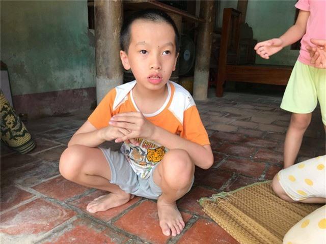 Đặc biệt Thuận An tính khí rất thất thường, dễ nổi nóng và cấu xé những người xung quanh.