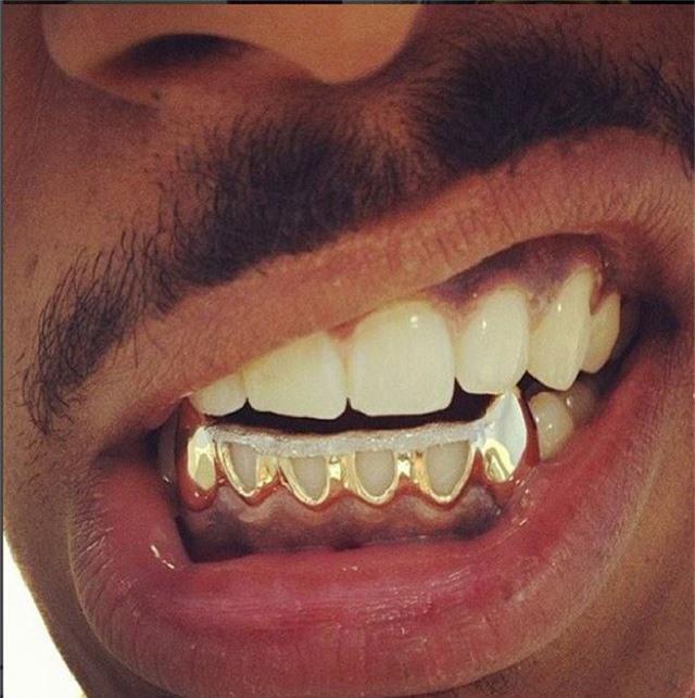 Thừa vàng với kim cương thì đính tạm vào răng vậy.