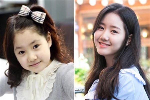 Jin Ji Hee sinh năm 1999 và là một trong những sao nhí đình đám nhất Hàn Quốc và có lượng fan đông đảo tại châu Á không kém các đồng nghiệp. Cô nổi tiếng chuyên trị những vai đanh đá và khôn lỏi. Năm 4 tuổi, Ji Hee lần đầu xuất hiện trong phim Khăn tay vàng, nét diễn hồn nhiên, bạo dạn của cô gây ấn tượng mạnh với các đạo diễn. Năm 10 tuổi, Jin Ji Hee gây sốt khi đảm nhận vai Jung Hae Ri chua ngoa, ngang ngược trong sitcom Gia đình là số một (phần hai). Vai diễn này đã giúp tên tuổi của nữ diễn viên được công chúng biết đến rộng rãi. Sau đó, mỹ nhân cũng góp mặt trong nhiều tác phẩm ở cả lĩnh vực điện ảnh lẫn truyền hình như Mặt trăng ôm mặt trời, The throne& Dù bận rộn đóng phim, Jin Ji Hee vẫn không bỏ lỡ việc học, tham gia đầy đủ hoạt động ở trường. Hiện tại, nữ diễn viên chia sẻ, cô dành nhiều thời gian để trau dồi diễn xuất với mong muốn có thể nhận được những vai diễn khó hơn.