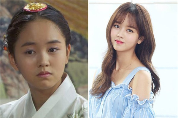 Kim So Huyn ra mắt khán giả lần đầu thông qua bộ phim Happy Woman năm 2007 khi mới 9 tuổi, lập tức được mọi người gọi yêu với cái tên Son Ye Jin nhí. Vì quá đam mê diễn xuất nên khi lên cấp 2, So Huyn đã xin phép gia đình cho phép tự học ở nhà để có thể dành nhiều thời gian theo đuổi nghệ thuật. Sau nhiều nỗ lực, chăm chỉ đóng phim, mỹ nhân nhận được nhiều lời khen từ giới chuyên môn. Năm 2015, với màn thể hiện xuất sắc vai nữ chính trong tác phẩm học đường đình đám School 2015, So Huyn chiến thắng giải Nữ diễn viên mới xuất sắc tại Lễ trao giải KBS Drama Awards. Tài năng không giới hạn của cô còn được thể hiện trong nhiều lĩnh vực khác như người mẫu, MC... Năm 2018, sau tác phẩm truyền hình Chuyện tình radio hợp tác cùng tài tử Yoon Doo Joon, So Huyn chưa tham gia thêm dự án nào.