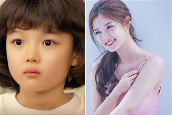 Kim Yoo Jung sinh ngày 22/9/1999 tại Seol, Hàn Quốc. Từ khi 4 tuổi cô đã cùng chị gái tham gia nhiều cuộc thi tài năng dành cho các em bé và đạt được nhiều thành tích. Yoo Jung đến với điện ảnh khi mới 5 tuổi qua tác phẩm về đề tài chiến tranh DMZ. Tuy tuổi đời còn trẻ nhưng mỹ nhân đã tích lũy được rất nhiều bộ phim ở cả lĩnh vực truyền hình lẫn điện ảnh. Lên 10 tuổi, cô nhận được nhiều giải thưởng và đề cử tại những lễ trao giải lớn như SBS Drama Awards, Grand Bell Awards... Không chỉ tích cực hoạt động ở lĩnh vực phim ảnh, Kim Yoo Jung còn nhận lời làm người mẫu, đại sứ thương hiệu cho nhiều nhãn hàng thời trang và chiến dịch cộng đồng. Hiện tại, cô là một trong những nữ diễn viên trẻ tiềm năng và sở hữu lượng fan đông đảo không chỉ ở Hàn Quốc.