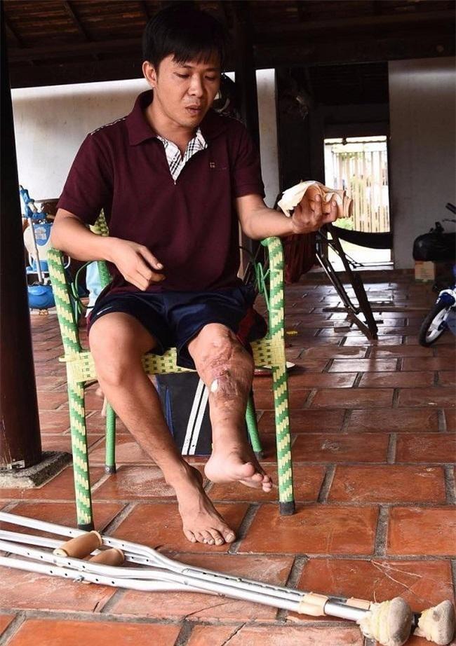 Anh Lê Thanh Thuận bị xe ben tông, thương tích 56%, chân ngắn đi 10cm, lái xe không bị xử lý hình sự (Ảnh T.L)