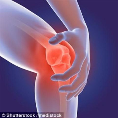 75% những người tham gia có tiếng lạo xạo ở đầu gối có biểu hiện viêm khớp gối khi chụp X-quang SHUTTERSTOCK
