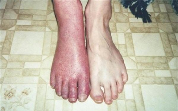 10 căn bệnh kinh dị nhất thế giới, số 1 khiến bạn khiếp vía vì quá đáng sợ - Ảnh 3.