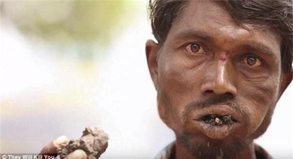 10 căn bệnh kinh dị nhất thế giới, số 1 khiến bạn khiếp vía vì quá đáng sợ - Ảnh 7.