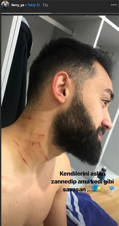 SỐC: Cầu thủ Thổ Nhĩ Kỳ giấu hung khí tấn công đối phương