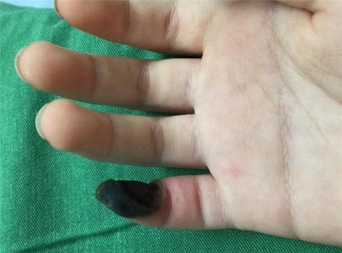 Ngón tay bị hoại tử của bệnh nhi.