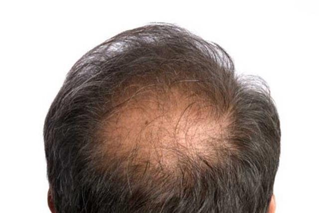 Nhận biết tình trạng sức khỏe của bạn qua mái tóc - Ảnh 8.