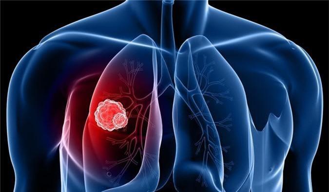 Ung thư phổi gây ra những cơn đau lưng.