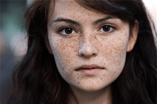 6 biểu hiện bất thường trên da đang ngầm cảnh báo nhiều vấn đề sức khỏe - Ảnh 7.