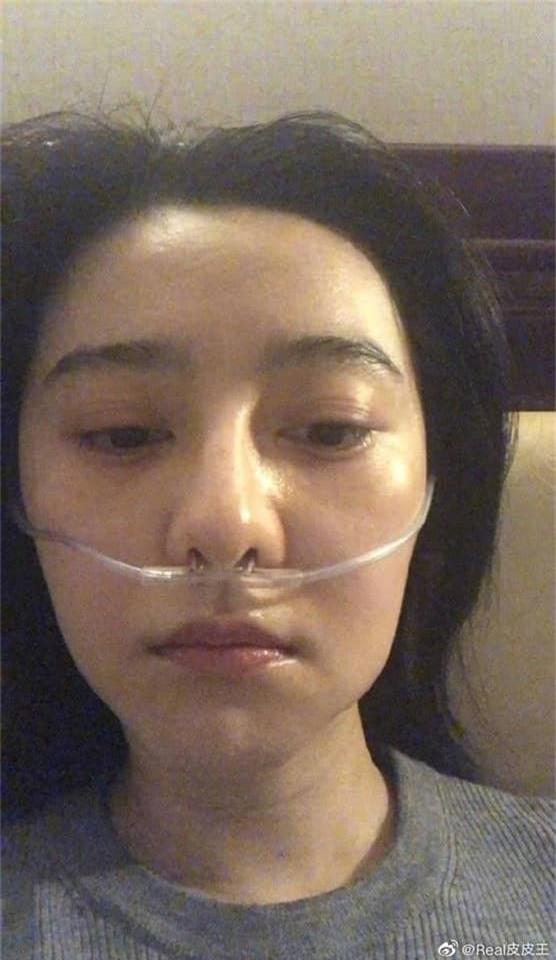 Khổ như Phạm Băng Băng: Bị suy kiệt sức khỏe phải thở bình oxy, truyền nước vẫn bị mỉa mai là làm màu, diễn sâu - Ảnh 5.
