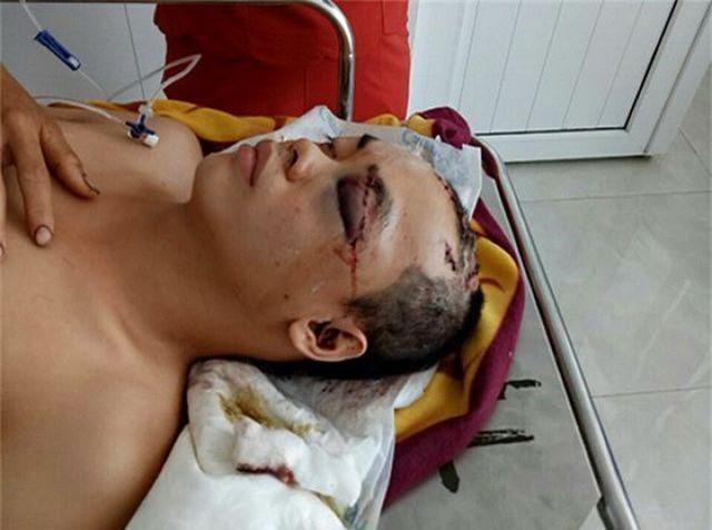 Anh Nguyễn Anh Vũ cấp cứu tại bệnh viện với nhiều vết thương.