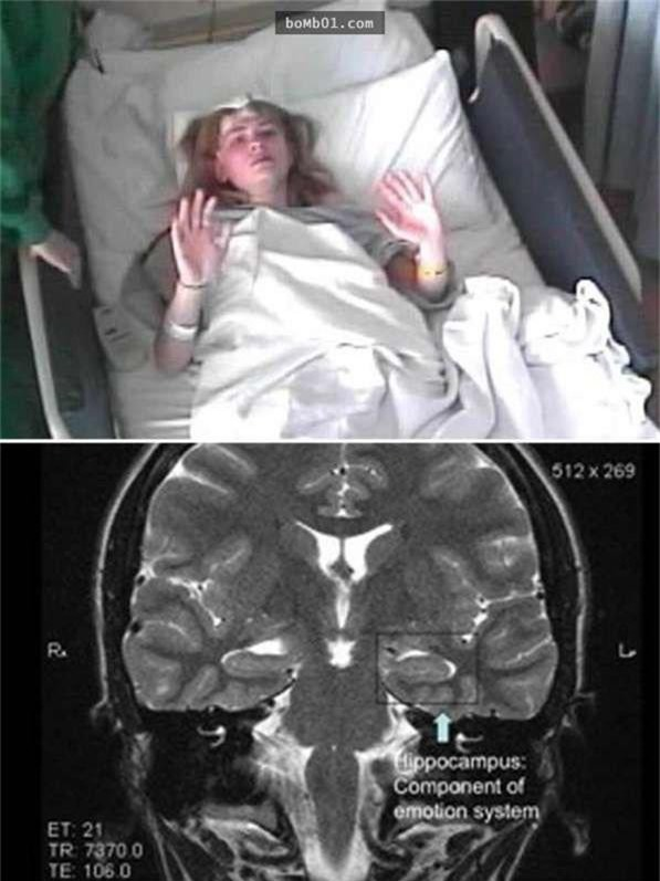 Hệ thống miễn dịch của cơ thể cô bị rối loạn, làm cô