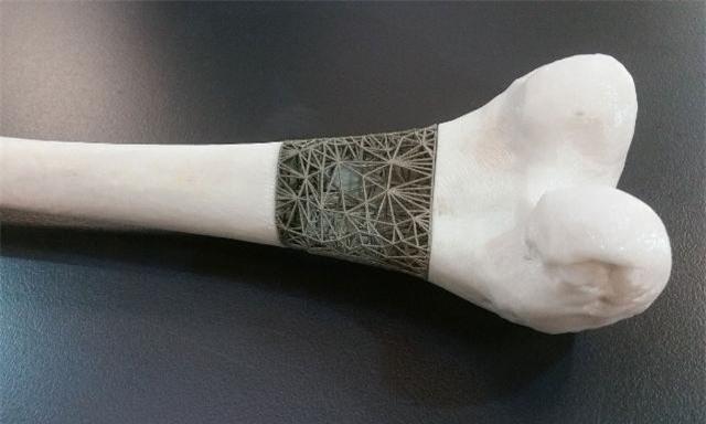 Một mẫu cấy ghép xương in 3D