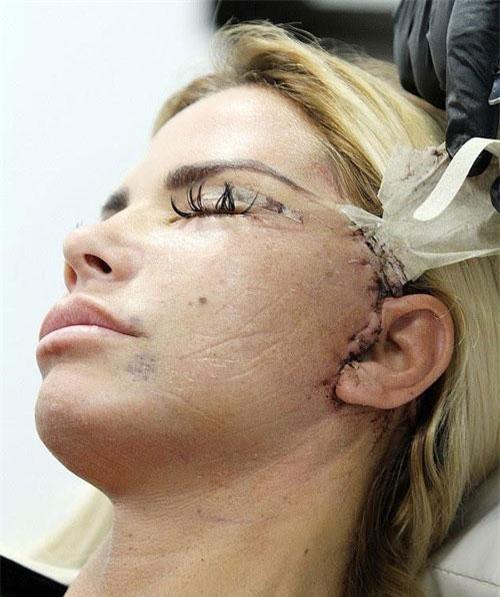 Hình ảnh Katie Price với vết khâu trong lần phẫu thuật thẩm mỹ mới nhất.