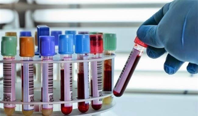 Những người ung thư máu thường xanh xao, mệt mỏi vì bị giảm lượng hồng cầu