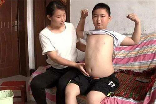 """Cậu bé phấn đấu được """"béo phì"""" chỉ để cứu bố"""