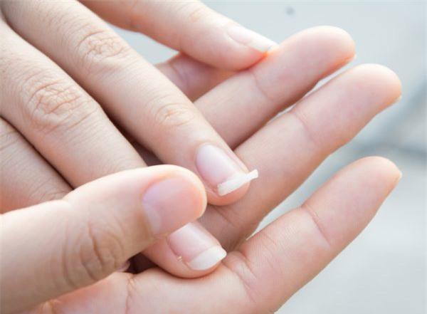 """10 biểu hiện bất thường trên tay đang ngầm """"tố cáo"""" hàng loạt vấn đề sức khỏe mà bạn không ngờ đến - Ảnh 7."""