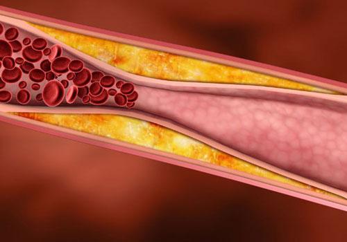 Cải thiện lưu thông máu: Tắm nước lạnh giúp cải thiện lưu thông máu, khiến máu di chuyển đến các cơ quan nhanh hơn để giữ cho cơ thể luôn được ấm áp. Khi có hệ tuần hoàn máu tốt, trái tim của bạn sẽ luôn khỏe mạnh.