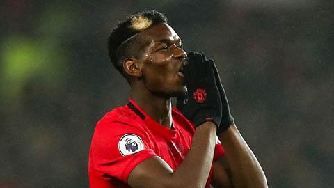 Paul Pogba vắng mặt trong cuộc đối đầu với Burnley