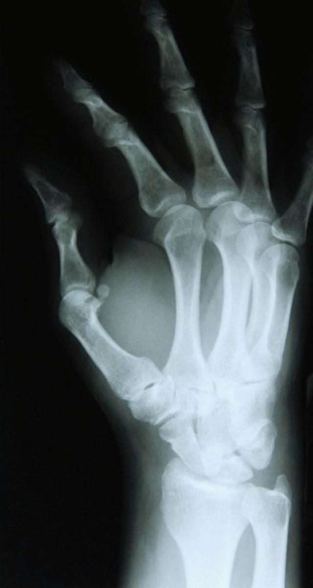 Người bình thường nào cũng có 14 đoạn xương trên một bàn tay.