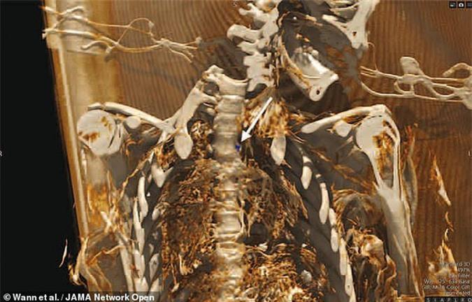 Xác ướp 2 đôi nam nữ kể chuyện khó tin về cái chết ở đảo băng - Ảnh 2.