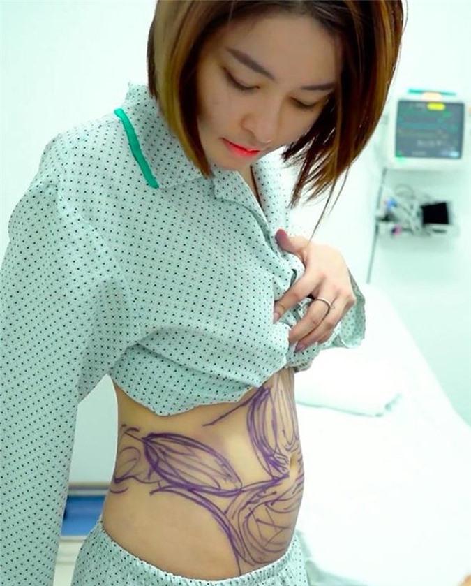 Hotgirl Tram Anh khoe eo thon sau khi hut mo bung 3 thang