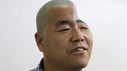 Ông Hồ, 46 tuổi, sống tại thành phố Tây An, tỉnh Thiểm Tây, Trung Quốc, gặp phải chấn thương nặng khi rơi xuống từ tầng 3 của tòa nhà ông đang sống. Hộp sọ của người nông dân biến dạng, hóp lại khiến ông trông gần như mất một phần đầu.
