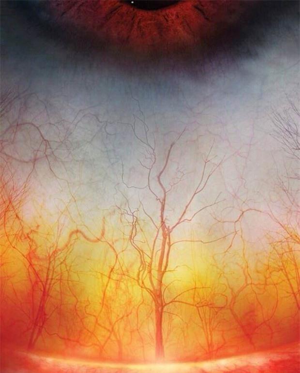 Khu rừng kinh dị trong ánh hoàng hôn rợp đỏ ư? Không phải đâu, mạch máu trong mắt đấy