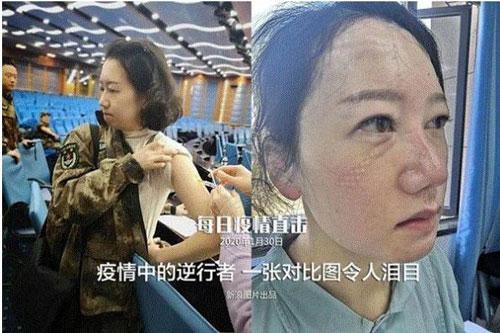 Liu Li, nhân viên y tế của Đại học Quân y và là y tá trưởng Khoa Phẫu thuật Gan mật của Bệnh viện Tây Nam phải chia tay con gái vào đêm Giao thừa tại sân bay để đến với những bệnh nhân tại Vũ Hán, Trung Quốc. Trước khi khởi hành, bệnh viện đã sắp xếp tiêm cho mỗi nhân viên một mũi thymosin để cải thiện khả năng miễn dịch. Bức ảnh bên phải được chụp những ngày gần đây, Liu Li không cầm được nước mắt khi phỏng vấn. (Ảnh: Nhân Dân nhật báo)