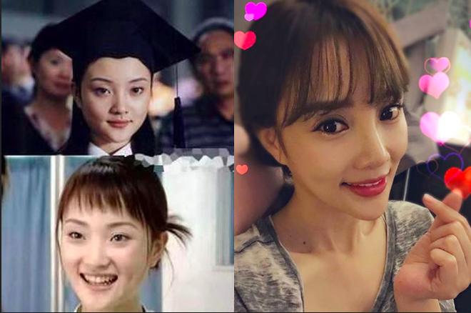 Quá quá nhiều điểm khác biệt trên khuôn mặt trước đây và bây giờ của Lý Tiểu Lộ - Ảnh: Sohu