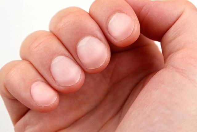 Nếu móng tay bạn có màu trắng bạc là dấu hiệu bệnh gan